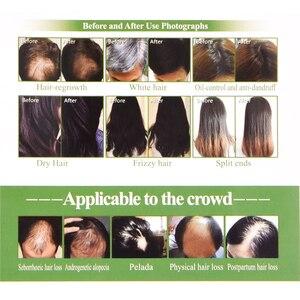 Image 3 - חשמלי לייזר צמיחת שיער מסרק נשירת שיער אנטי טיפול אינפרא אדום RF ננו אדום אור EMS רטט עיסוי שיער מברשת שיער care46