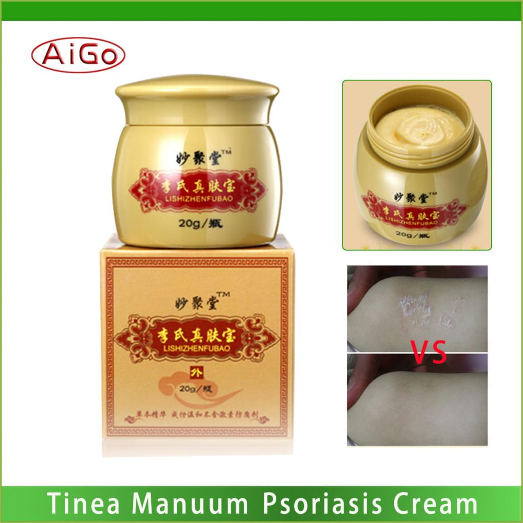 No Hormones Psoriasis Treatment Cream Tinea Manuum Pedis Ringworm