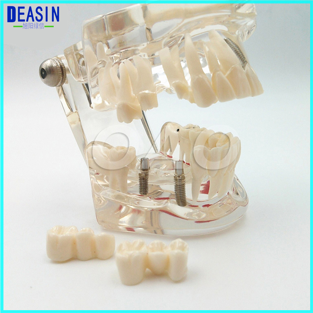 Dental implant Demonstration Bracket Simulation Caries Teeth Model teeth removable Dentist heymodel dental implant demonstration model dentist doctor patient communication model