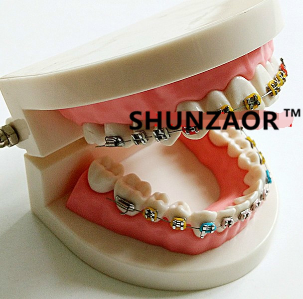 SHUNZAOR Dental orthodontic plastic teeth study model with elastic bands bracket and elastic chain 2016 dental orthodontics typodont teeth model half metal half ceramic brace typodont with arch wire