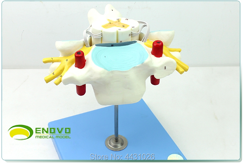 ENOVO The anatomical model of the nerve orthopedics of the cervical spinal cord and spinal nerve 10pairs lot ek10 ef10 ball screw shaft guide end supports fixed side ek10 and floated side ef10