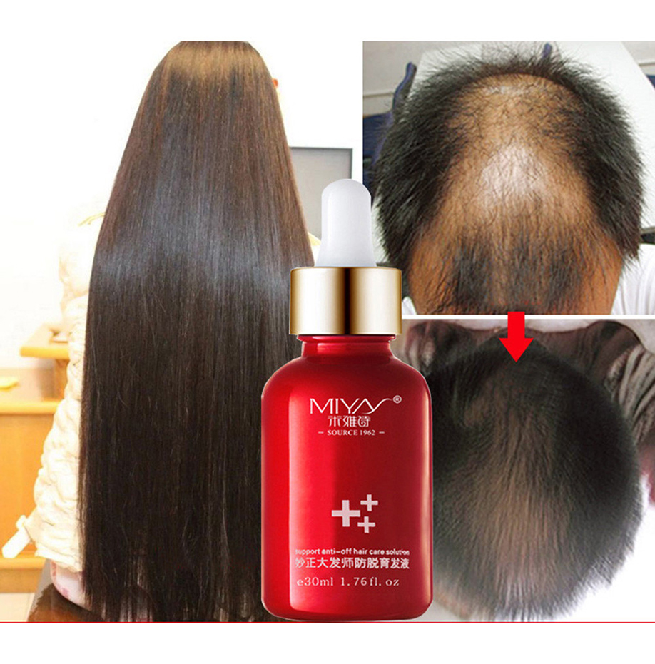 Essence-Oils Hair-Care-Solution Hair-Loss-Supplement Beauty-Support Thinning-Hair New