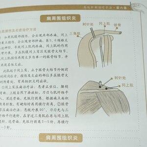 Image 3 - גרפי דיקור ומוקסה Daquan ספרי רפואה הסינית zhong yi ג ן ג יו שפה בסינית למבוגרים