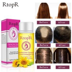 20ML Anti Hair Loss Herbal Hair Growth L