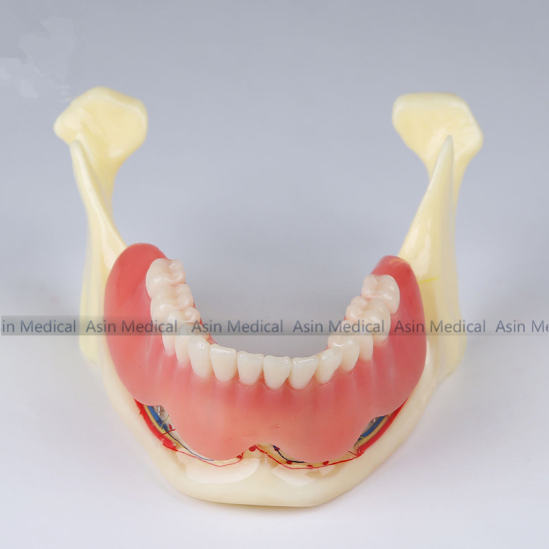 high quality 2018 new Resin mandibular denture Coverage model Mandible belt nerve model Display dentures Removable teeth model coverage metrics for model checking