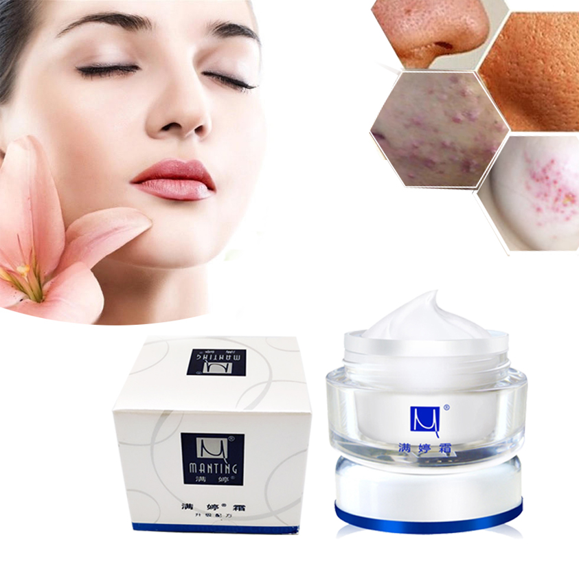 Manting Cream Mite Bug Busters Face Care Acne Treatment Scars Ance Remover Cream Removing Blain Refreshing Moisturizing Cream