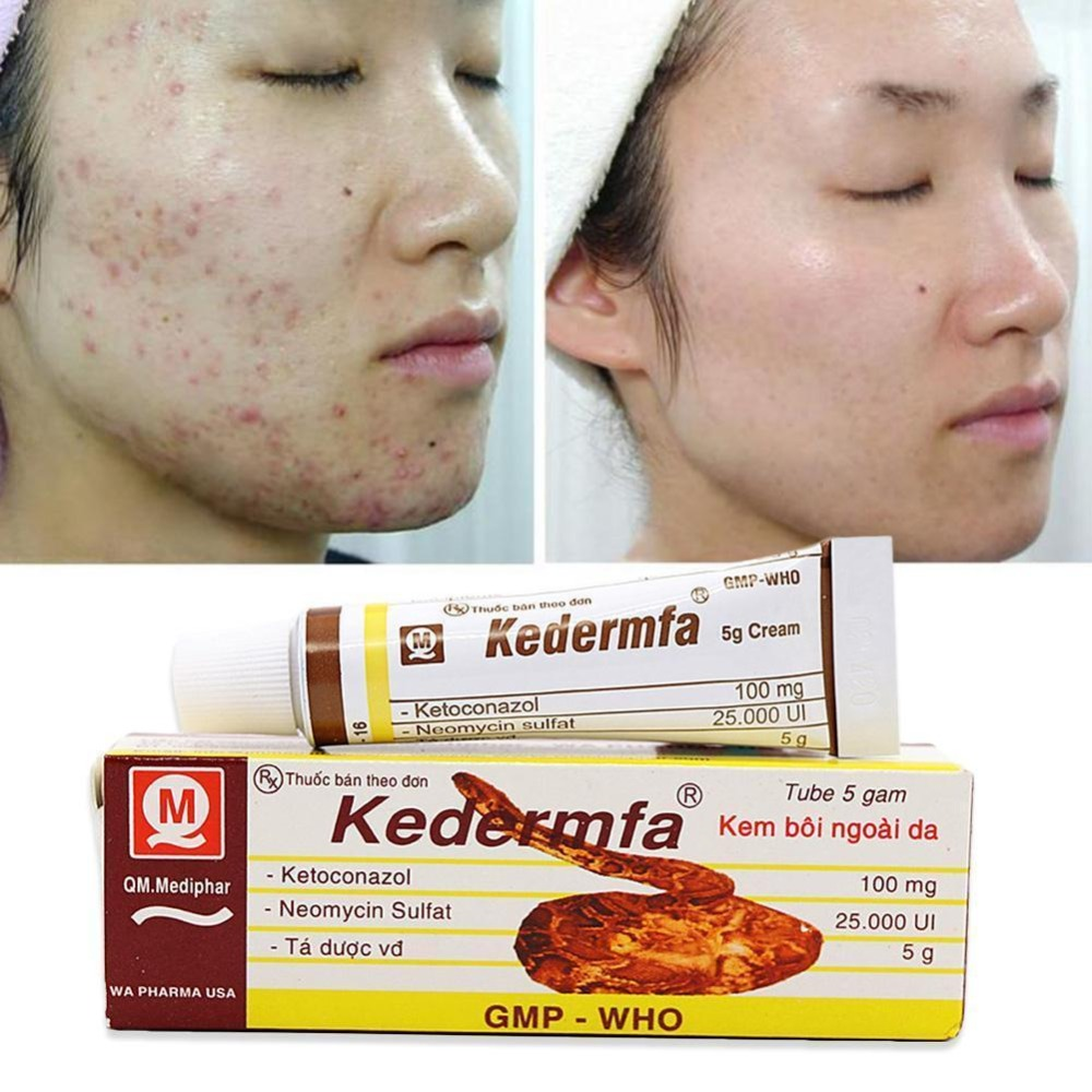 Vietnam Kedermfa 100% Original Snake Oil Hand Skin Face Care Cream Snake Balm Ointment 5g/Tube Nourishing Skin Moisture Body