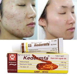 Vietnam Kedermfa 100% Original