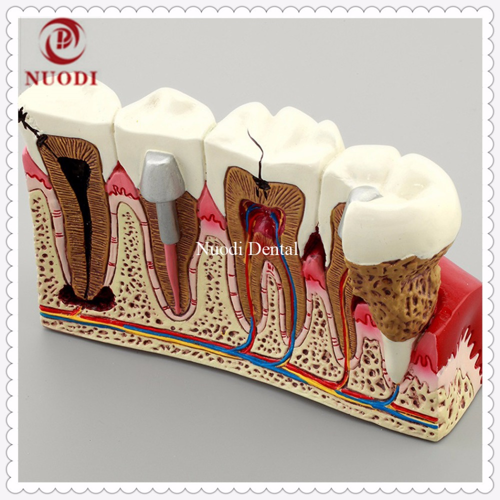 Anatomy of dental caries teeth model 4Times Caries Comparation Teeth Model Dentistry Disassembling Caries dental tooth