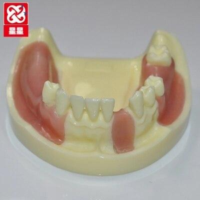falta de simulacao do modelo de implantes dentarios dentes perdidos frete gratis