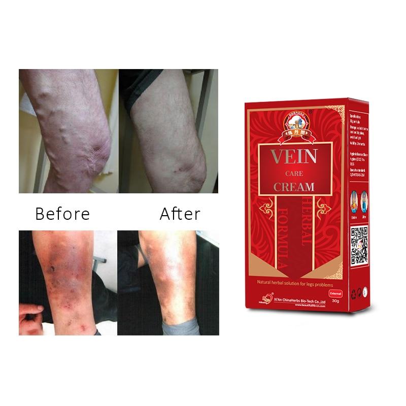 5 հատ ոտքի այտուցված կրեմ Varicose veins ցավ - Առողջապահություն