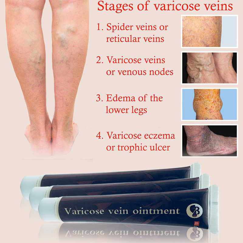 100% Original ยา PlasterTreatment แมงมุมหลอดเลือดดำขอด Ointment เส้นเลือดขอด Vasculitis Health Care ครีม