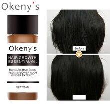 Fast Hair Growth oil Essence serum ginger shampoo for Women man anti Hair Loss treatment Hair Repair