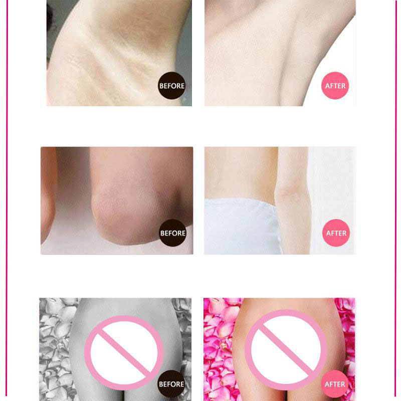 50G Armpit Whitening Cream Body Underarm Whitening Cream Legs and Knees Private Parts Skin For Bikini Underarm Thigh Cream 5