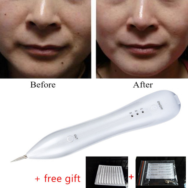Rechargeable warts removal machine laser freckle mole spot for Freckle tattoo cost