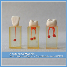 ED-DH1403 S7 Series Root Canal Transparent Crown Block 3in1, Medical Science Educational Dental Teaching Models
