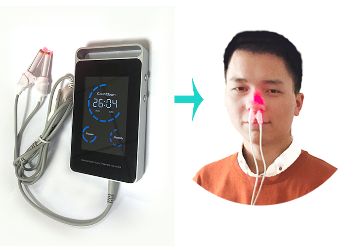 Allergic Rhinitis Low Level Soft Laser Therapy Nose Pain Control Medical Device for Personal Use recyclable nose cleaner nasal cavity cleaning device medical and health care nose cleaning bottle with water flow control switch