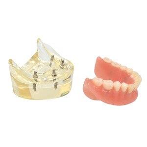 Image 5 - Dental Overdenture ฟันรุ่นที่ถอดออกได้ภายใน Mandibular ล่างฟันรุ่น Mandibular พร้อม Implant สำหรับฟันการสอนการศึกษา