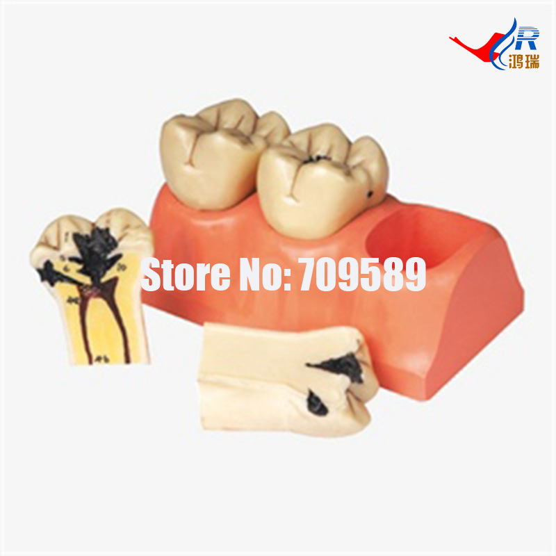 Dissected Model of Dental Caries, Dental Care Model soarday dental endodontic restoration model teaching communication model pathological display dental caries
