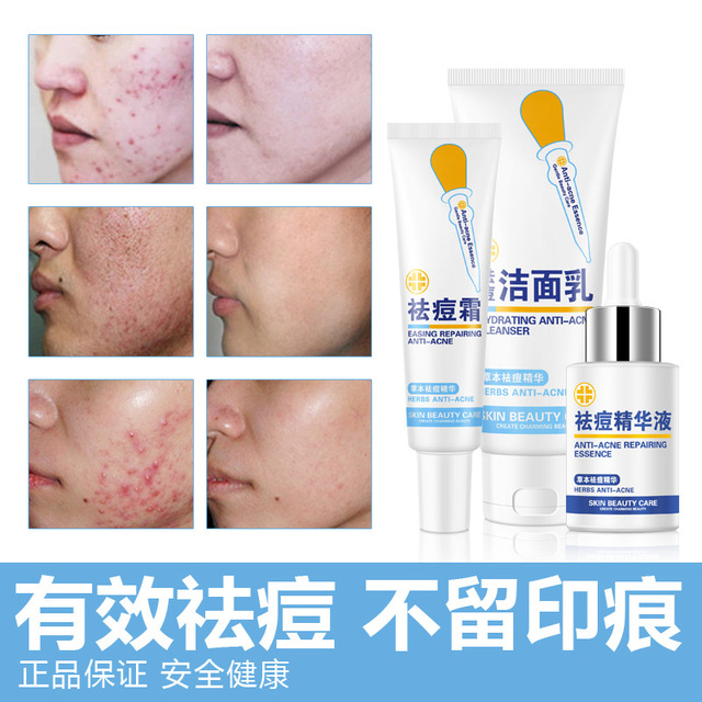 Acne Treatment Skin Care Cream 3pcs Sets Whitening Moisturizing Oil Control Anti Acne Herbal Facial Cleansing Beauty Face Care
