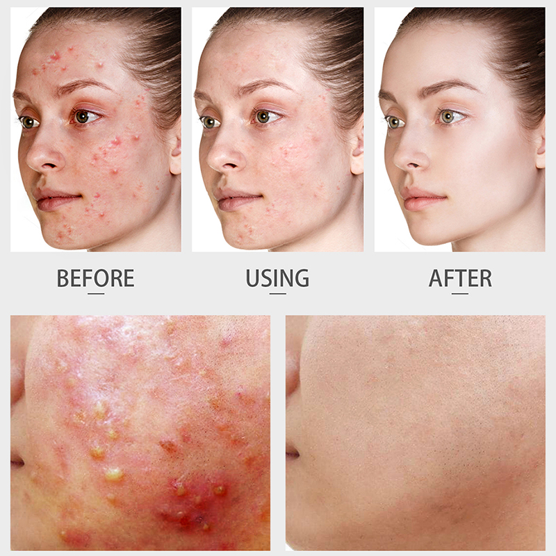 ALI shop ...  ... 32826710167 ... 2 ... Tea Tree Acne Facial Cream Treatment Anti-Acne Shrink Pores Face Cream Collagen Whitening Hyaluronic acid Moisturizing Skin Care ...