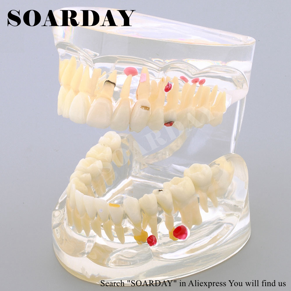 SOARDAY Pathological Restoration Model Teaching Demonstration Dentist Patient Communication Model Dental Materials soarday 1 piece 2 times dental pathological model implant bridge crown treatment oral teaching model
