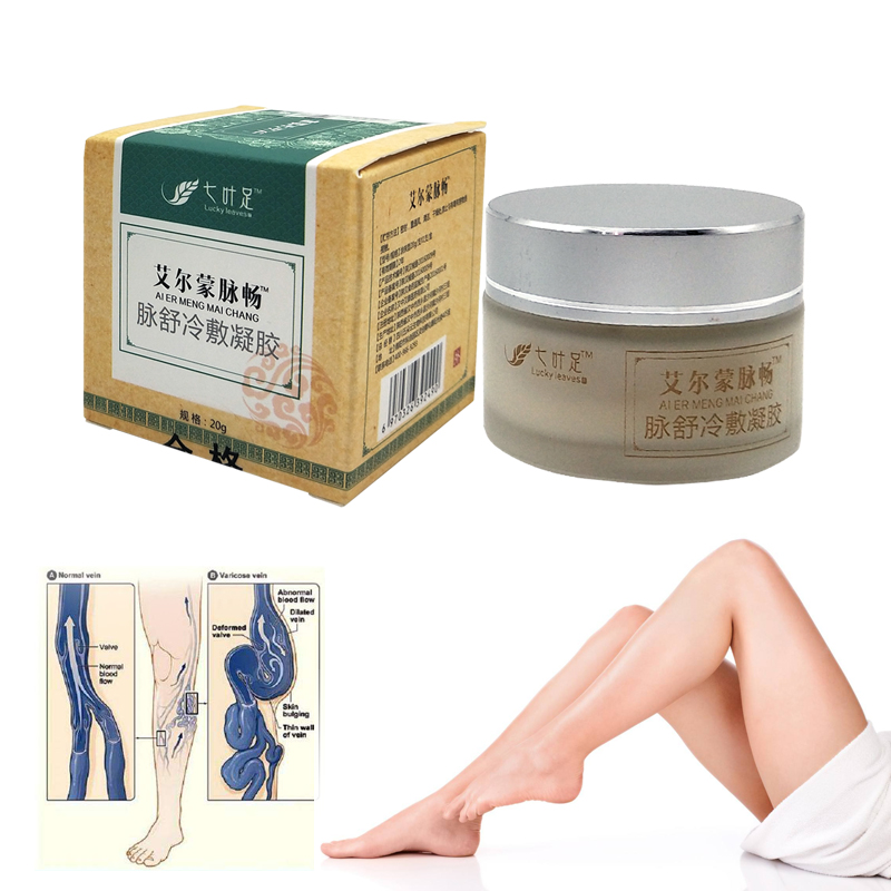 Varicose Veins Cream Of Varicose Veins Medical Spider Veins Treatment Chinese Herbal Medicine Varicose Veins Ointment 20g