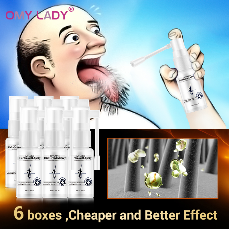 OMYLADY Anti Hair Loss Hair Growth Spray Essential Oil Liquid For Men Women Dry Hair Regeneration Repair Hair Care Products