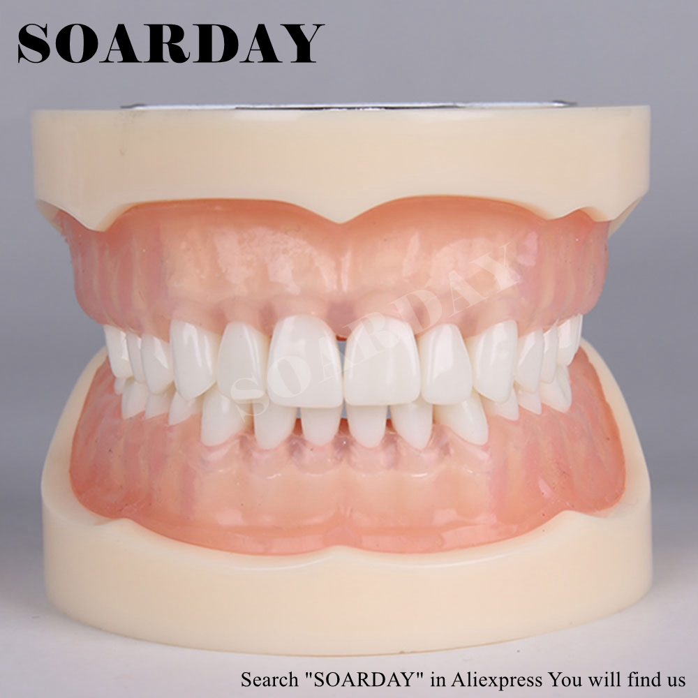 SOARDAY Dental Standard Teeth Model Soft Gums Teaching Training Dentist Patient Communication new arrival classification of periodontal diseases teeth model dental patient communication model process of periodontal disease