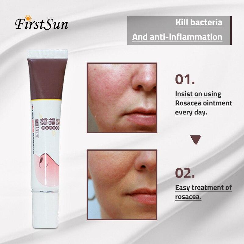 Firstsun Cremas Para La Rosacea Herbal Plant Medicine Treatment Red Nose Remove Blackhead Acne Mite Cream Skin Care Shrink Pores