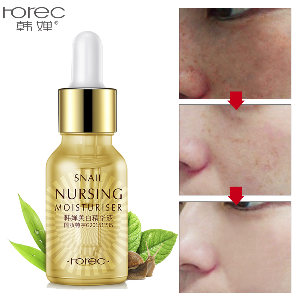 Gold Snail Serum Face Cream Essence Acne Treatment Black