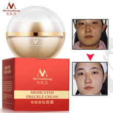 2pcs Strong Effects Powerful Freckle Cream Skin Care Remove Melasma Acne Spots P