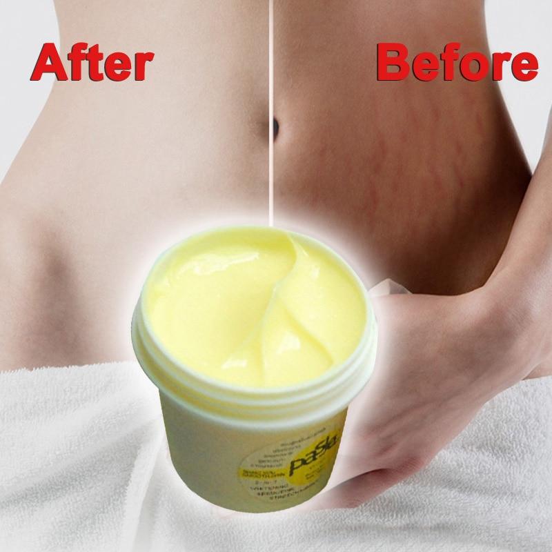 Genuine Thailand Skin Body Cream Remove Stretch Marks Treatment Postpartum Repair Whitening CREAM Pregnancy Scar Removal