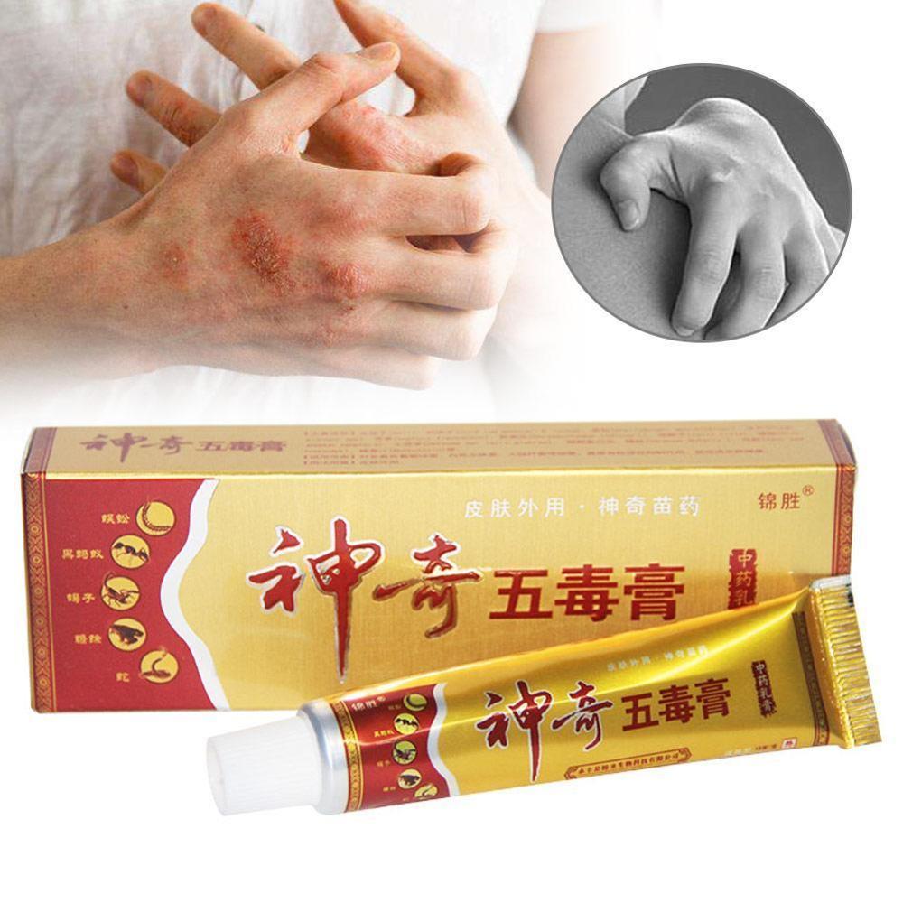Herbal Psoriasis Pruritus Cream Dermatitis Eczematoid Eczema Ointment Treatment Psoriasis Cream Skin Care Cream 15g