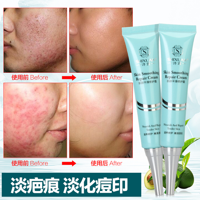 Scars Freckle Removal Cream Facial Face Skin Care Anti Wrinkle Anti-aging Stretch Marks Acne Treatment Gel to Remove Scars Cream