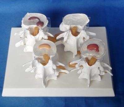 Medical human Lumbar disc hernia Demo Model spine model free shipping