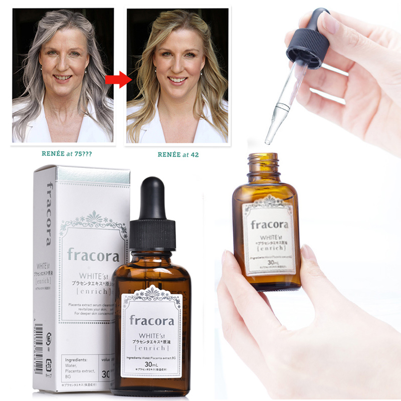 Japan Fracora White'st Placenta Serum 30ml Face Whitening Essence For Brighter Skin