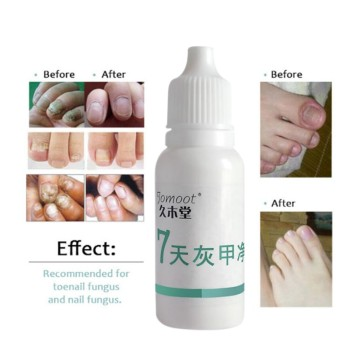 Professional Nail Treatment Liquid Nail Nourishment Oil Antifungal Nail Repair Bright Toe Finger Fungus Removal Feet Care L9 Nail Treatments