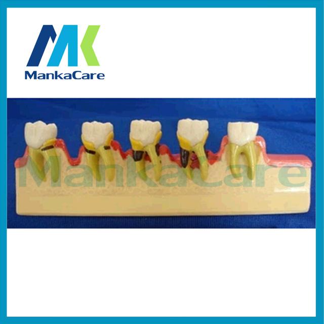 Manka Cuidar-Modelos de DENTES Dente Dental Modelo de Classificação de Doenças Periodontais Decveloping Educação