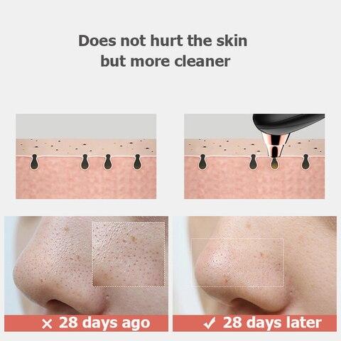 preto removedor de cravo rosto mais limpo vacuo