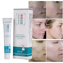 цена на Remove Acne Scars Repair Gel Skin Care Red Spots Face Cream Stretch Marks Pimple Scars Moisturizing Anti-inflammatory