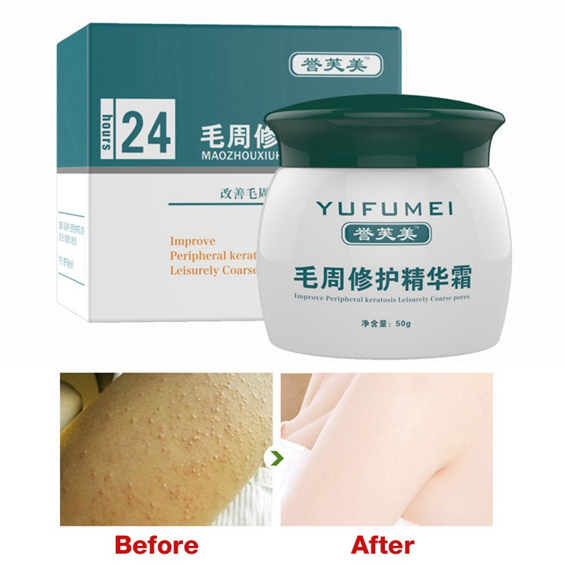 50g Curing Keratosis Pilaris/ Kp/ Chicken Skin Body Lotion Skin Repair Cream