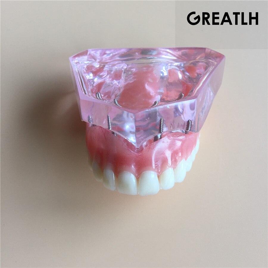 Modèle d'implant dentaire modèle de dents dentaires