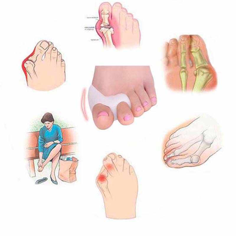 2 個 = 1 ペアゲル足ケアツール腱膜瘤コレクター骨親指プロテクター外反母趾ストレイテナー足スプレッダーペディキュア
