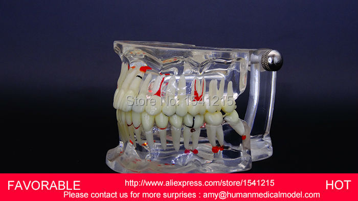ADULT DENTAL TEETH MODEL,NATOMIACL TOOTH,ADULT TEETH MODEL,MEDICAL ,ADULT DENTAL PATHOLOGICAL DENTITION MODEL-GASEN-DEN045