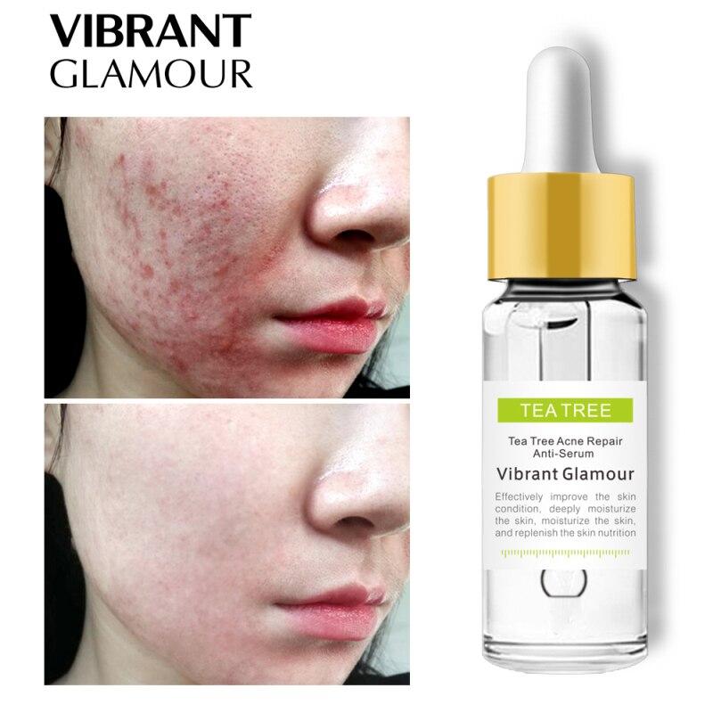 VIBRANT GLAMOUR Tea Tree Repair Face Serum Acne Scar Shrink Pores Eliminates Acne Treatment Oil Control Essence Face Serum TSLM2