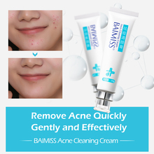 BAIMISS Acne Cleaning Cream Skin Care Remove Repair Comedone Pimple Acne Quickly Face Acne Cream Remover