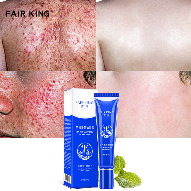 Acne Scars Cream Tea Tree Acne Treatment Face Care Anti Acne Removal Gel Whitening Moisturizing Cream 30g Skin Care TSLM1(China)