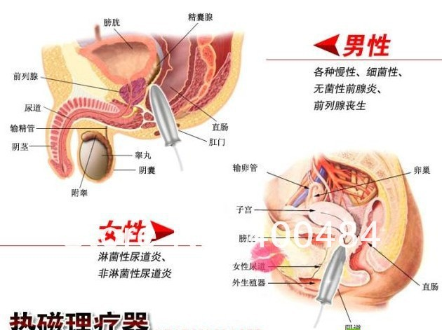 prostata dildo massage side