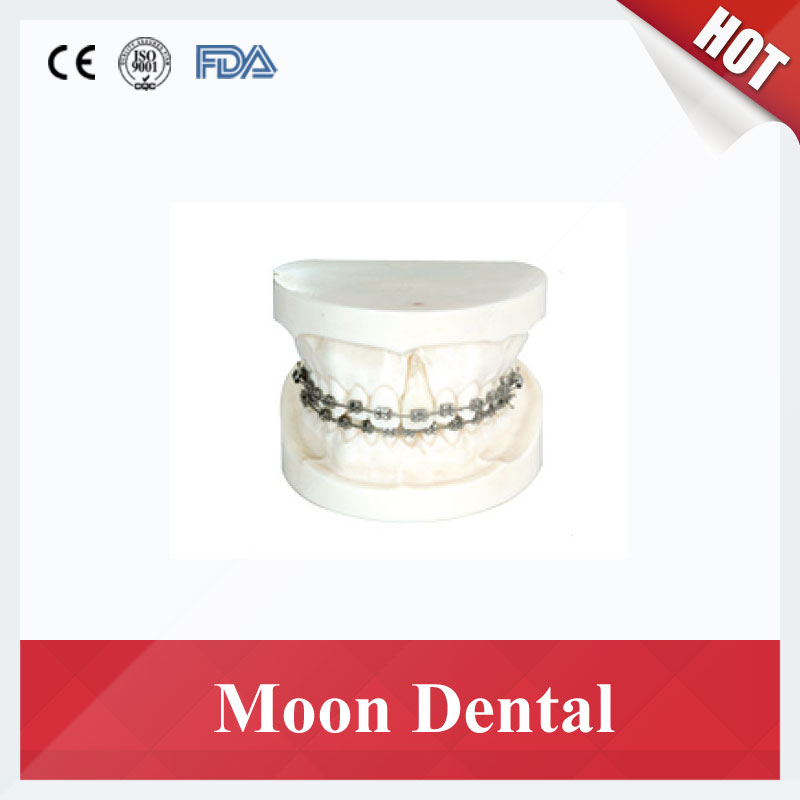 1 Piece Orthodontic Training Teeth Model With Edgewise Bracket for Dental Study & Teaching transparent dental orthodontic mallocclusion model with brackets archwire buccal tube tooth extraction for patient communication